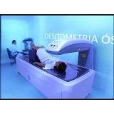 densitometria dexa no Campo Grande